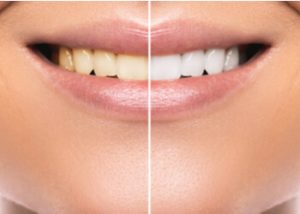 safe teeth whitening tips how to make your teeth white burwood